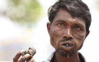 Индус уже 20 лет ест не меньше килограмма земли в день